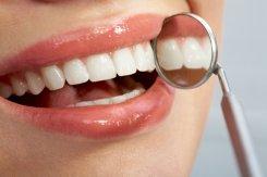 Вся правда о моде на голливудскую улыбку: польза и вред